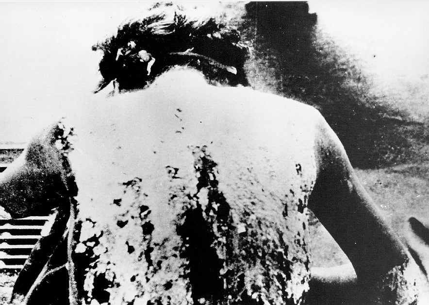 Hiroshima heat wave injuries photograph depicting bomb related injuries inflicted at hiroshima from the heat wave thecheapjerseys Gallery
