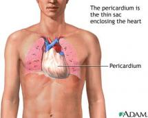 Pericardium and Its Role in a Crucifixion