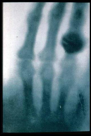 First X-ray - 1895 - Anna Bertha Roentgen's Hand Disasters Social Studies Medicine Famous Historical Events STEM World History