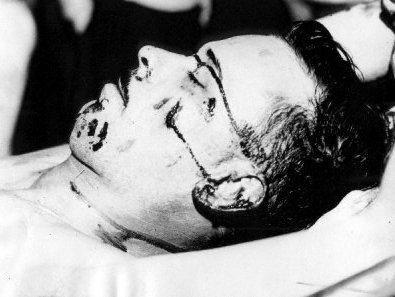 Dillinger - Facial Injury at Death Crimes and Criminals American History Biographies Famous People