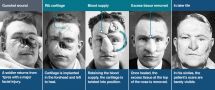 Facial Wounds from Shrapnel Strike in WWI