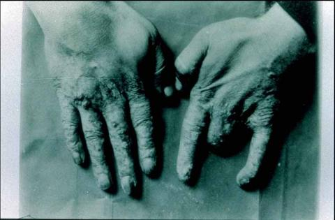 Photograph taken of the hands of Dr. Mihran Kassabian who was a pioneering radiologist