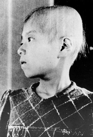 Photograph of an eleven year old girl with Radiation Sickness-a victim of the Hiroshima bombing
